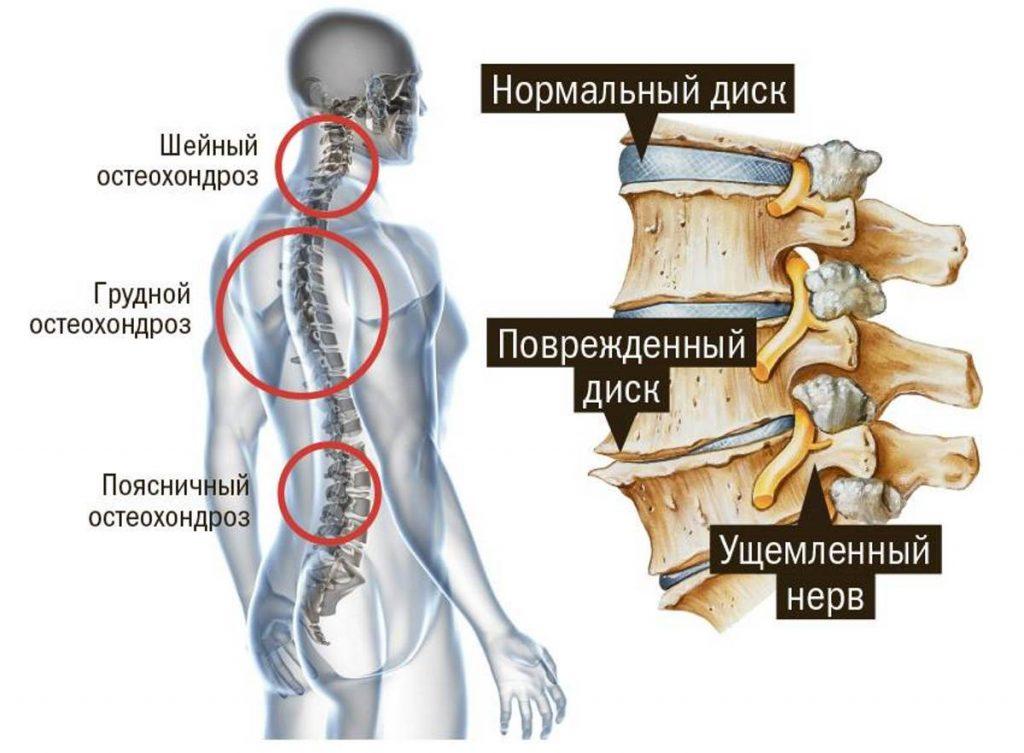 Апитерапия при остеохондрозе