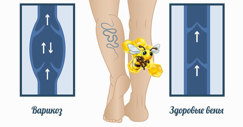 Лечение варикоза пчёлами