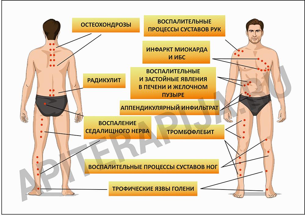 Схема точек по болезням