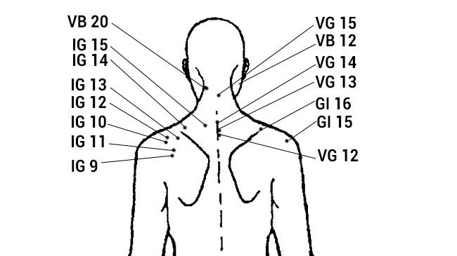 Схема точек ужаливания при остеохондрозе
