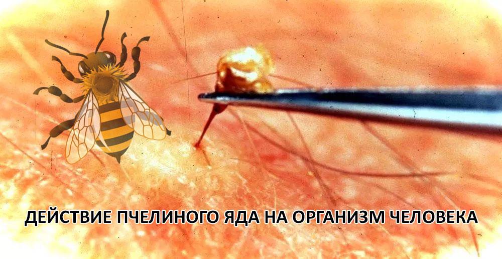 Действие пчелиного яда на человека