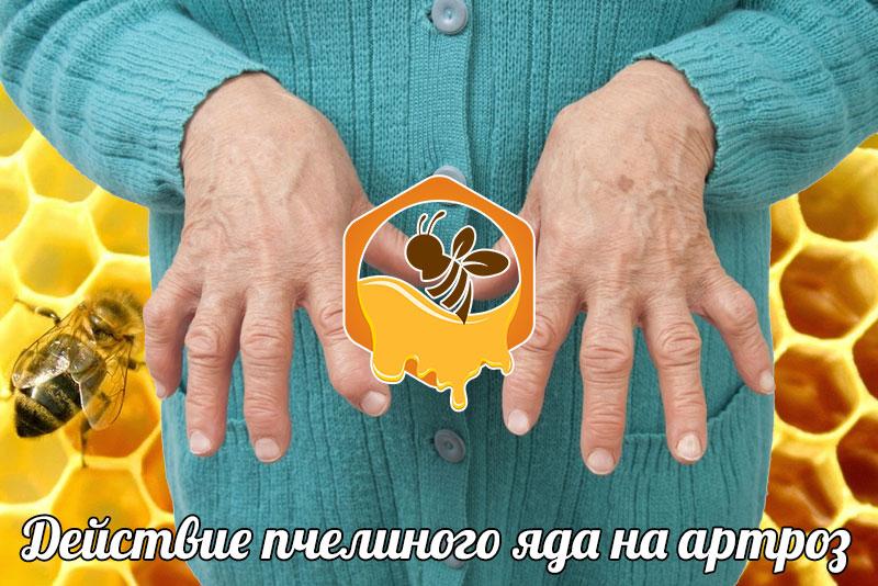 Действие пчелиного яда на артроз