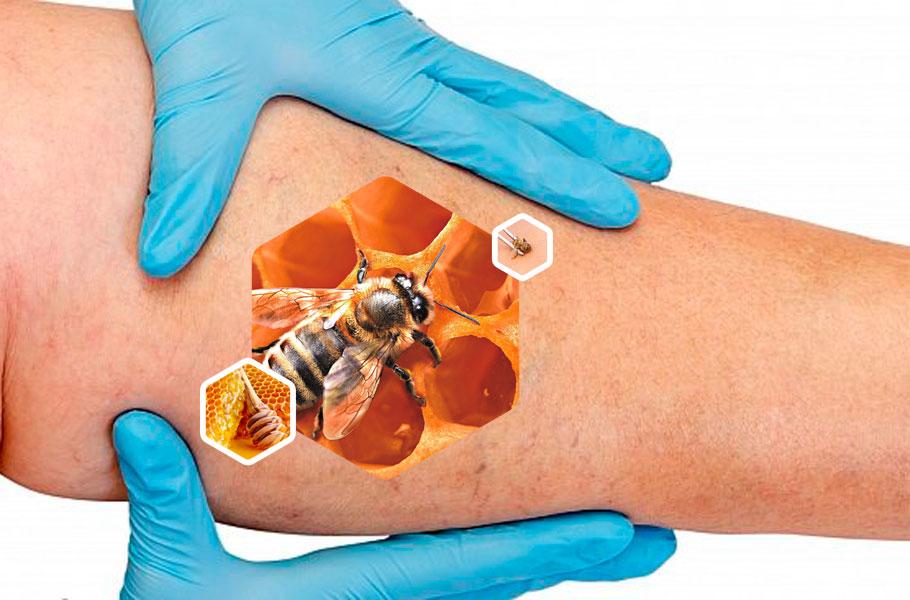 Лечение варикоза пчелиным ядом