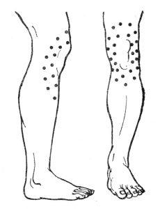 точки постановки пчел для лечения суставов